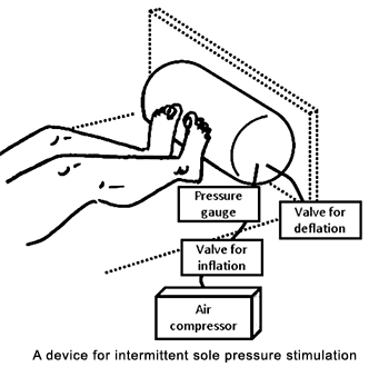 A device for intermittent sole pressure stimulation